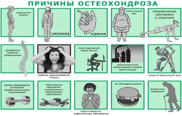 Распространенные причины остеохондроза