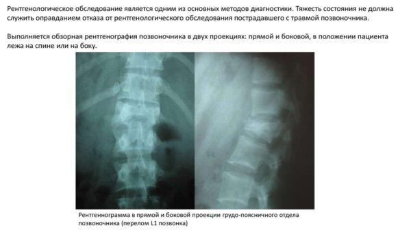 Рентгенологическое исследование, как метод диагностики