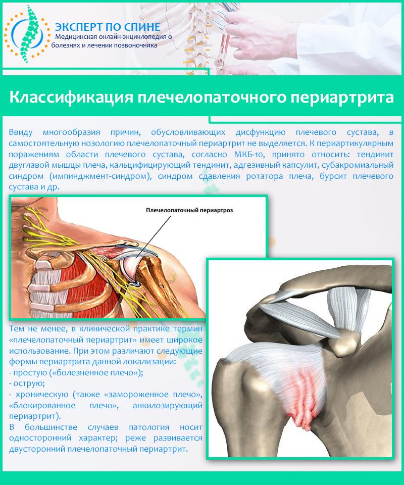 Как в домашних условиях лечить плечелопаточный периартрит 555