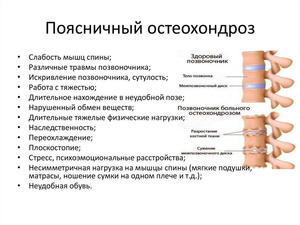 Остеохондроз грудного отдела в домашних условиях
